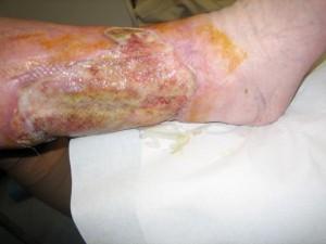 Bild Gleixner, Behandlung mit Medihoney
