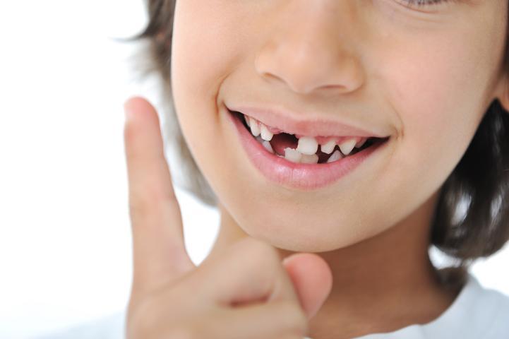 Propolis bei Zahnausfall