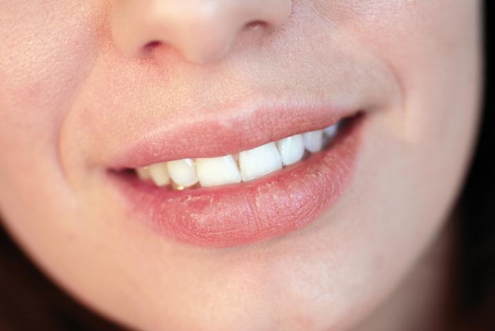 Lippenpflege mit Honig