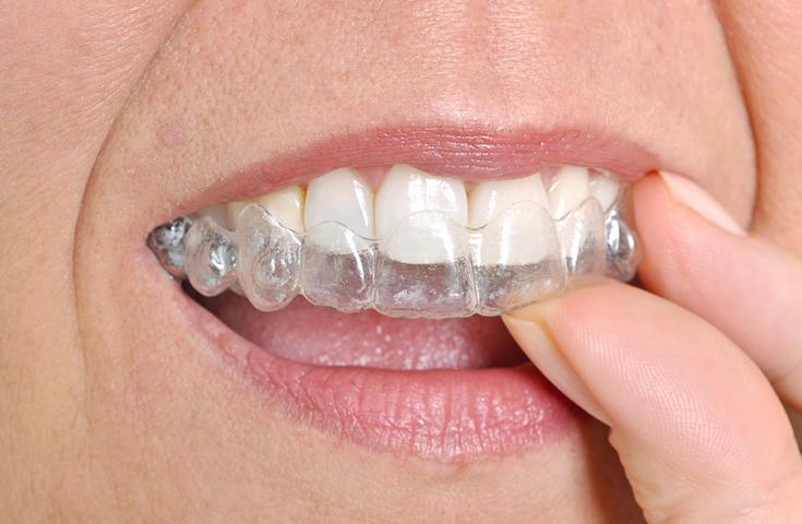 Apitherapie Zähneknirschen