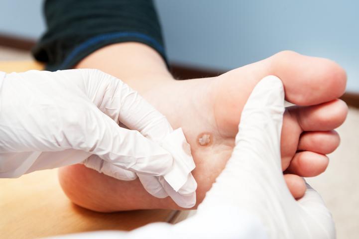 Diabetes, diabetischer Fuß, Propolis, Amputationen