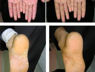 Schuppenflechte mit Apitherapie behandeln